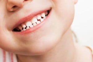 clean baby teeth