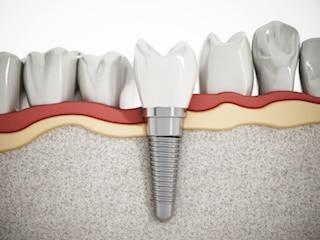 all-on-4 dental implant